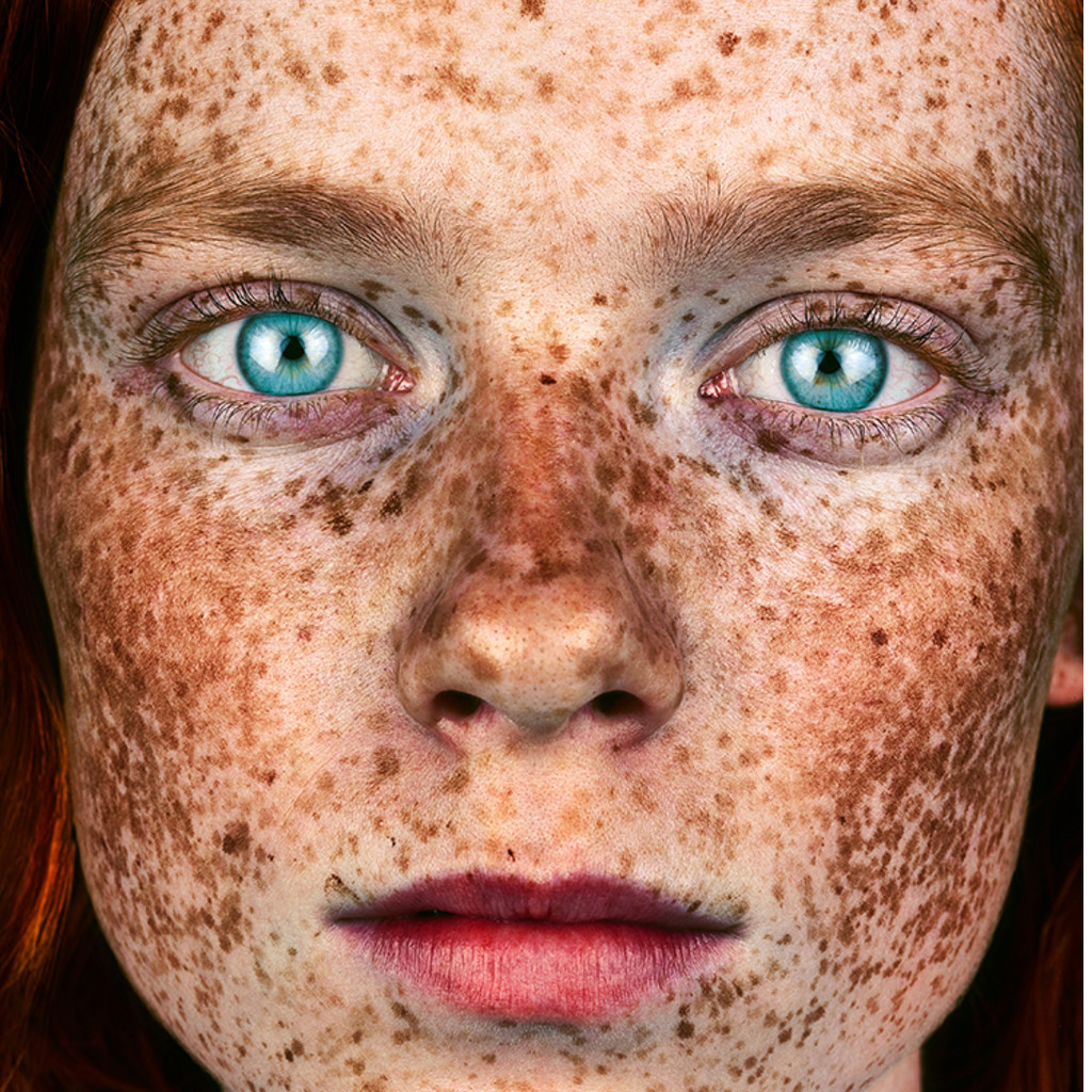 BROCK ELBANK SHOOTS FOLLOW-UP PORTRAIT OF FACE BEHIND THE FRECKLES SERIES TWO YEARS LATER